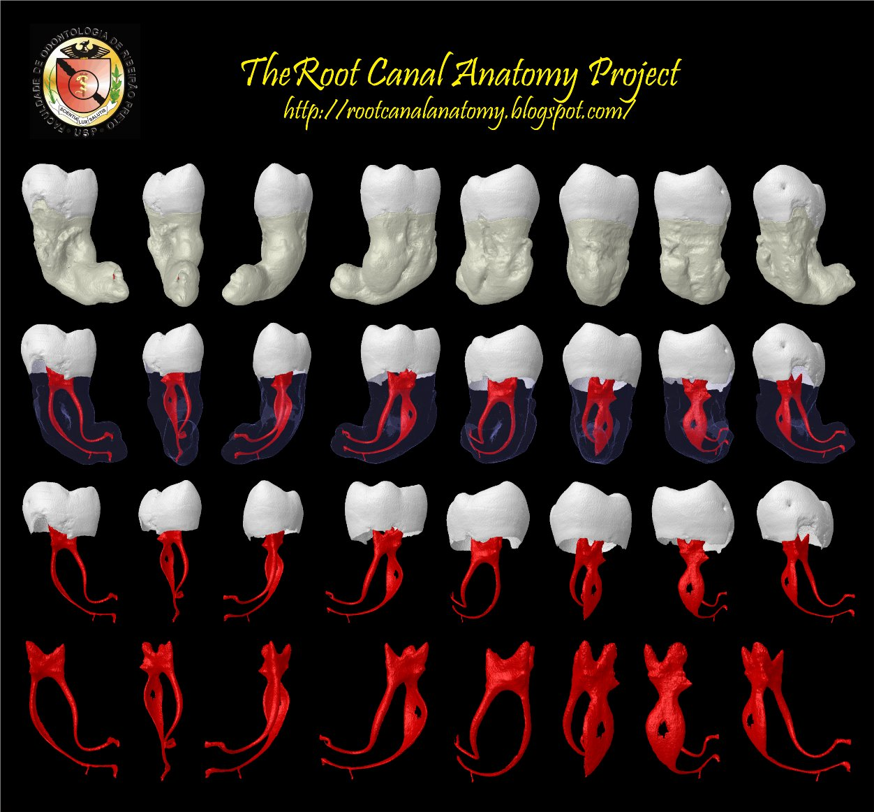 Root Canal Treatment | Neutral Bay Family Dental